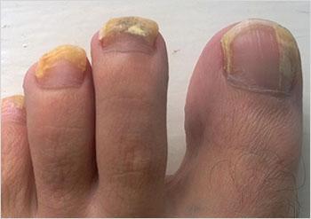 does keto diet cause toenail fungus
